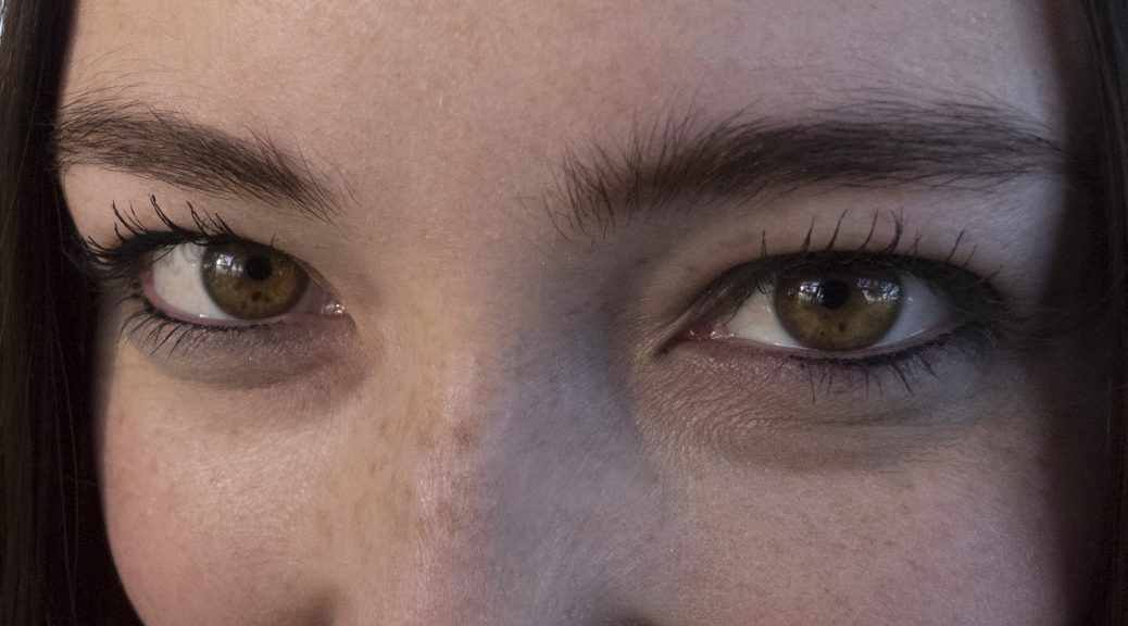 Freckles in the eyes